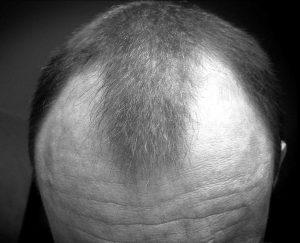 a man with hair curves