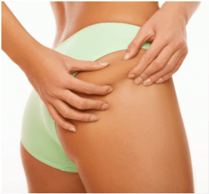 a woman checks whether she has cellulite
