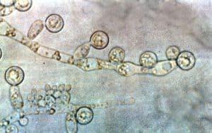 Candida albicans fungi