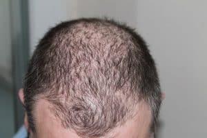 the balding man