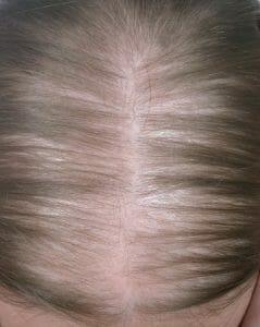baldness in women